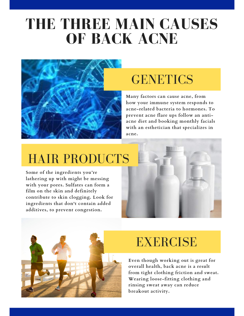 The Three Main Causes of Back Acne