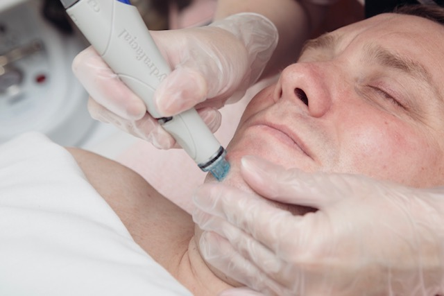 Is the HydraFacial the Holy Grail of All Facials?